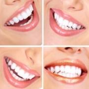 Красота улыбки - залог привлекательности и успеха